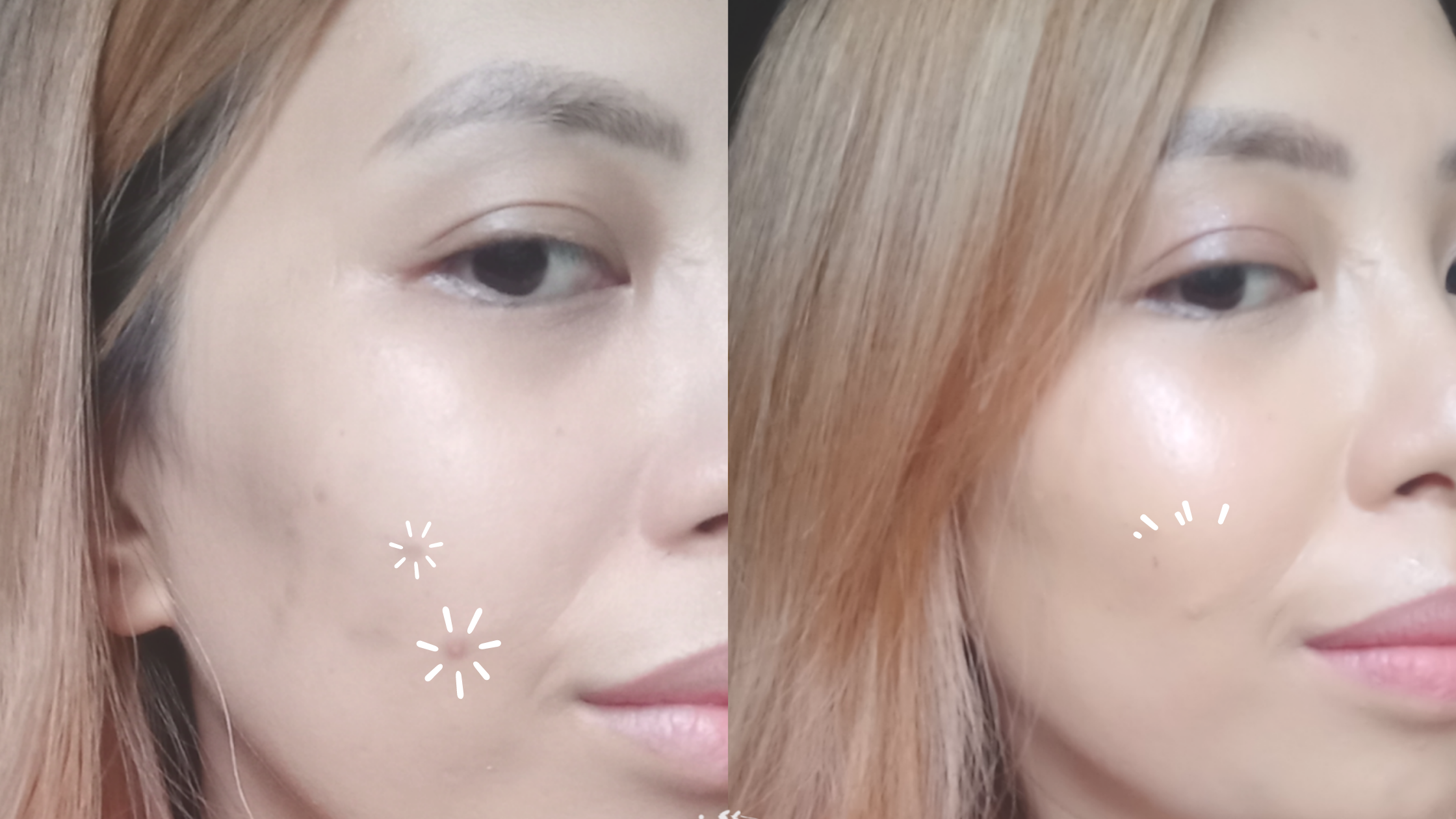 Before and After using Ellana Cosmetic Cream